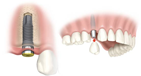 Dental Implant 10